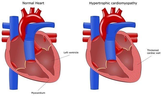 SSMI Case: Hypertrophic Cardiomyopathy